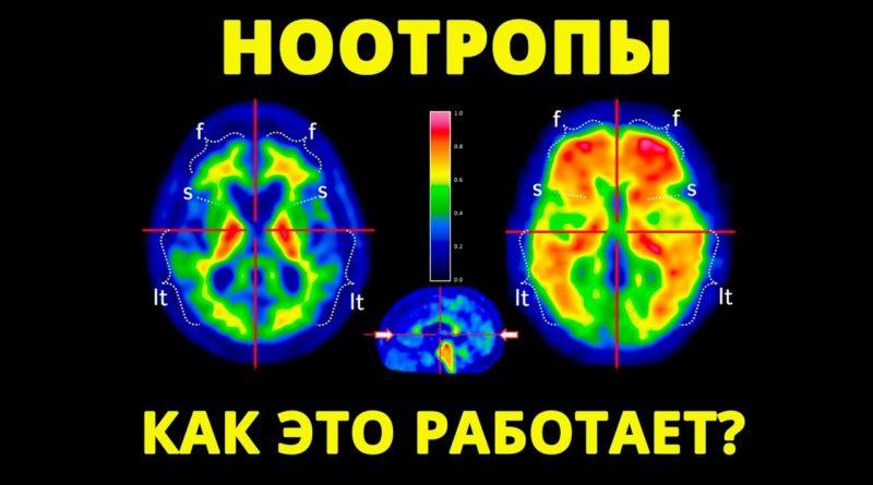 Ноотропы (список препаратов по эффективности) по отзывам